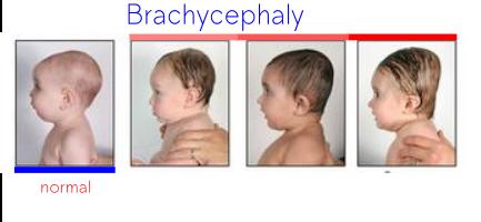 brachycefalia