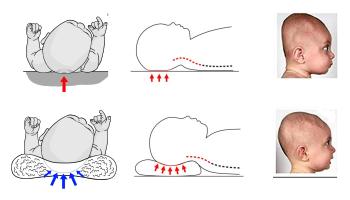 zasada działania poduszki-na-płaską-głowę-v2